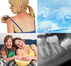 Four images: A person lifts their swimsuit strap to show sunburned shoulders. Blue watercolor painting of curling and foaming waves. Two teens on a sofa with a bowl of popcorn. X-ray of teeth.