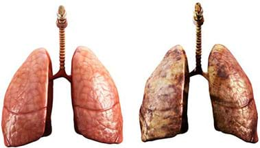 Two photos: healthy lung (left) and contaminated lung (right).