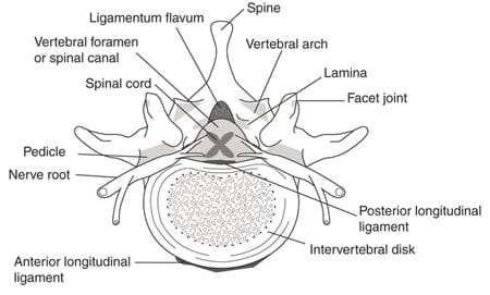 A cross-section drawing of the human spine identifies its structures: ligamentum flavum, spine, vertebral arch, facet joint, posterior longitudinal ligament, intervertebral disk, anterior longitudinal ligament, nerve root, pedicle, spinal cord and vertebral foramen (or spinal canal).