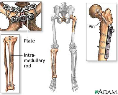 Drawing shows a human skeleton of pelvis, legs and feet with three locations containing bone repair using a pin, plate and intramedullary rod.