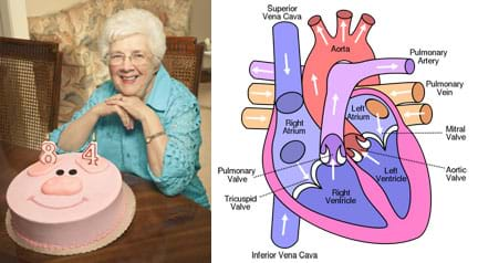 "Two images: Photo shows a white-haired woman sitting at a table in front of a round, pink, pig-faced cake with an ""84"" candle on it. Arrows show the blood flow through a drawing of the human heart cavities, valves, arteries and veins."
