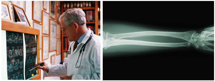 Two photos: (left) a man looks at a series of MRI results mounted on a wall light box. (right) An x-ray image shows forearm, wrist and finger bones.
