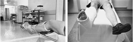 Two photos: (left) A lower leg is kept rigid in a splint. (right) A man laying on a gurney with one leg in a cast from below his knee to his toes.