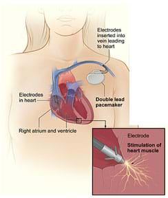 A drawing shows a cross-section of a person's chest with a pacemaker with wires with electrodes inserted into the right atrium and ventricle of the heart through a vein in the upper chest. A detail drawing shows the electrode electrically stimulating the heart muscle.