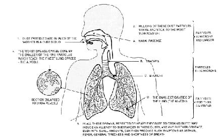 A cut-away human body diagram with a description of the intake of dust particles; how they stick to nasal passage, trachea, bronchi, lungs and alveoli surfaces; symptoms of repeated or heavy exposure to dusts; and worst damage when smallest particles reach alveoli.
