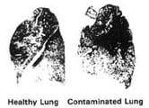 Two black and white photos: healthy lung (less dark) and contaminated lung (darker).