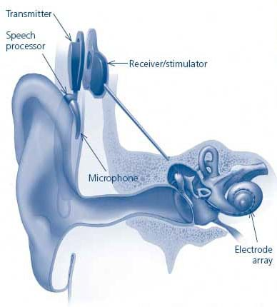 A cut-away drawing of an ear shows placement of the transmitter, speech processor, microphone, receiver/stimulator and electrode array.