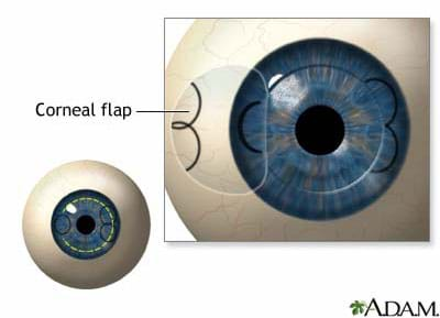 Diagram looking at an eyeball, shows a still-attached clear tissue opened to the side of the iris.