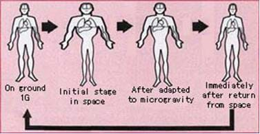 From left to right, four figures represent the stages of fluid shift during space flight. On the left, a person on the ground shows fluids at normal. Next, when they first get into space, they have a swollen torso and head, and after being in space for awhile, they experience some fluid loss but torso and head are still slightly swollen. Last, once they get back to Earth, they have a normal-sized head and torso.