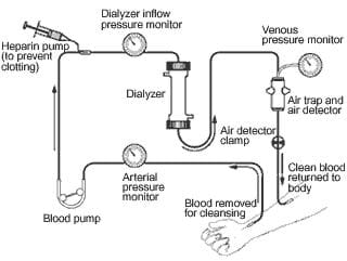 A schematic drawing of the overall dialysis system, showing the steps of dialysis, including: blood being removed from a person's arm, running through the dialyzer, and the clean blood being returned to their arm.