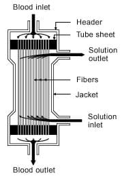 A drawing of kidney dialysis machine's hollow fiber dialyzer showing the blood inlet and outlet, solution inlet and outlet, and fibers.
