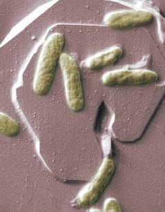 A microscopic photograph shows long, oval ameba-like bacterial organisms on a brown surface.