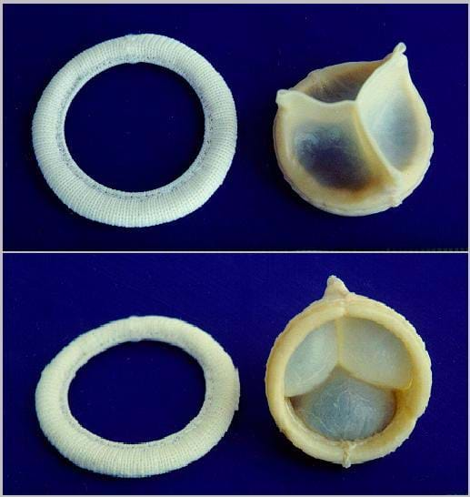 Photos shows the top and bottom views of what looks like a cloth ring and a three-piece funnel-shaped object.