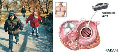 Two images. Two children run in the park. A medical illustration shows a cutaway view of the human heart and an arrow showing placement of a mechanical valve.