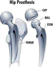 A black and white drawing shows a hip prosthesis components: cup, ball, stem, and where the stem is inserted into the femur.