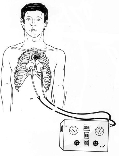 Drawing shows the Jarvik 7 artificial heart implanted in the body, and connected to its external drive system.