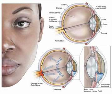 "A medical illustration shows the left half of a person's face as if you were looking at her. To the side are three cross-sections of eyes. One provides labeled parts of a normal eye: iris, lens, cornea, optic nerve, fovea centralis in macula, vitreous body, choroid, sclera, cillary boy and muscle. Another similar eye cross-section is amended with the word ""pressure,"" and arrows that point toward the back of the eye to the optic nerve. The final cutaway diagram shows a close-up image of the anterior chamber and a buildup of aqueous humor fluid."