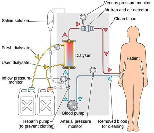 A diagram shows a simplified dialysis treatment circuit. Arrows show the path of blood from a patient, through a blood pump and dialyzer, then back into the person. Fresh and used dialysate containers are part of the dialyzer segment of the process.