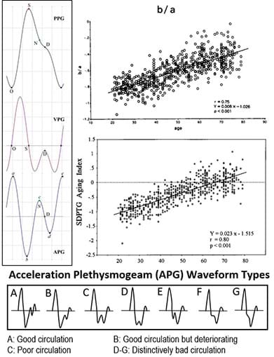 An image identifying PPG, VPG, and APG pulses and the statistical analysis that gave formulas to quantify the arterial stiffness, vascular aging indexes, as well as vascular age.