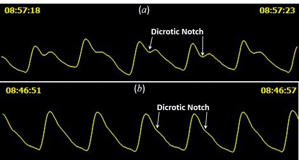 Dicrotic Notch definition on the PPG pulse depends on the age. The younger and cardiovascular healthier the individual, this point will be better defined.