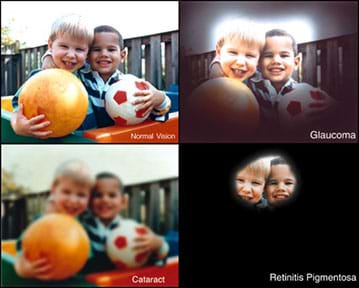 "Four images show the same view of two older toddler boys embracing and holding a soccer ball and bouncy ball near a wooden fence. The first image is ""normal vision."" The glaucoma version is darkened all around the edges, with only the boys' heads (in the center) looking like normal vision. The retinitis pigmentosa version is like the glaucoma version with the darkened edges even more pronounced, leaving just the eyes, noses, foreheads and mouths of the kids' faces visible. The cataract version shows the entire image (no blackened areas), but it is overall fuzzy, not crisp."