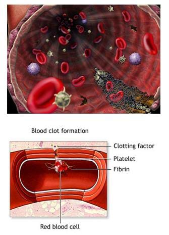 Two medical illustrations of blood clots forming in blood vessels. One identifies a red blood cell, fibrin, platelet and clotting factor. The other image depicts the inside of a blood vessel with the identified elements floating in the blood.