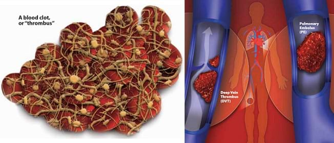 "Two medical illustrations: A drawing of a blood clot or ""thrombus"" shows its components, such as red blood cells, platelets and fibrin. A drawing shows two of the most dangerous blood clots: a deep vein thrombus (DVT), which is a blood clot that forms in a major vein deep inside the body, and a pulmonary embolus (PE), which is a blood clot in the lungs."