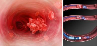 Two medical illustrations show a blood clot (glob of platelets) in a blood vessel, and a tube and wire device in an artery (a cut-away view of the Merci L5 retrieval system, used for clot removal in ischemic stroke patients).