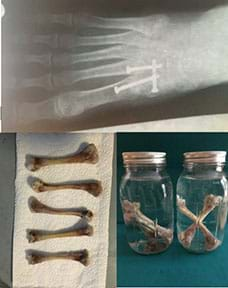 Top: X-ray of a right foot with metatarsal fusion showing three screws; bottom left:  Five chicken bones stripped of meat and arranged on a paper towel; bottom right:  five bones decalcifying in two jars of vinegar, three in one and two in the other.