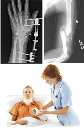 Three photos: An x-ray shows an upper arm bone (femur) broken between the elbow and shoulder. A nurse helps a girl sitting in a bed with a cast on her forearm and support collar around her neck. An x-ray shows a left hand and forearm with internal pins and external devices connecting the palm area to the area above the wrist.