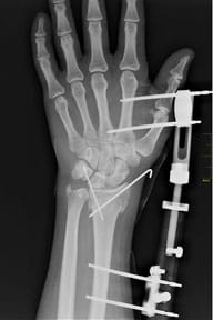 An x-ray shows a left hand and forearm with internal pins and external devices connecting the palm area to the area above the wrist.