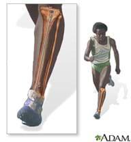 A medical illustration shows a running man and a close-up, see-through drawing of one of his legs from knee to foot, revealing the existence of a tibial intramedullary rod inside to strengthen his shinbone.