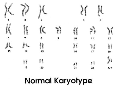 An illustration shows 46 chromosomes numbered and organized into 23 homologous pairs.