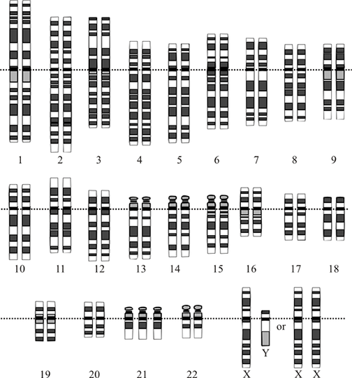 An illustration that shows 47 chromosomes organized into numbered homologous pairs, with the exception being location 21 that has three copies of that chromosome (one extra).