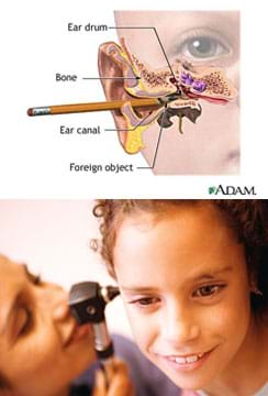 A cutaway medical illustration shows the pointed end of a pencil in a child's ear, lodged into the ear canal all the way to the ear drum. A photo shows a woman using a handheld device to look into a girl's ear.