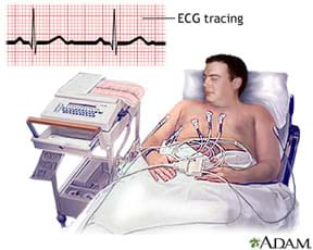 A drawing shows a man reclining in a bed with electrodes on his bare chest connected to a device near the bed. A line drawing shows the familiar blips of an electrocardiogram (heartbeat)—an ECG tracing.