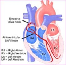 Cutaway drawing of the heart chambers identifies the locations of the sinoatrial (SA) node and atrioventricular (AV) node.