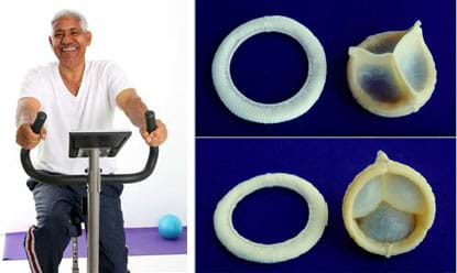 "Two images: An older man rides an exercise bicycle. Two photographs show different sides of the mechanical components of a heart valve bioprostheses or ""tissue valve,"" which is an engineered heart valve to replace a diseased valve. This valve prosthesis is made of two parts: a ring (serving as the valve rim, sewn in by the surgeon) and a three-part insert/stent/body (that goes inside the ring/rim)."