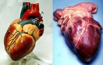 Two photos: A model human heart. A real human heart from an autopsy.