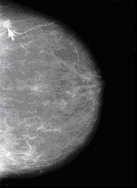 An arrow points to a whitish area in a black and white image, a mammogram.