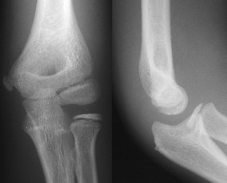X-ray showing an Ap and laterial of an elbow.