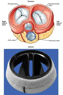 Two images: A cross-section drawing of the heart with the four heart valves identified: tricuspid, bicuspid/mitral, aortic and pulmonary. A photograph of an example engineered artificial heart valve, an Aortic Karboniks-1 bileafter prosthetic heart valve, which looks somewhat like a black plastic top to a coffee cup with finned openings, surrounded by a softer white material.
