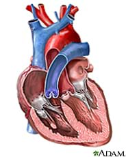 A cutaway drawing of the human heart with the chambers exposed.