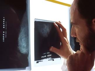 A man examines black and white mammogram films on a wall-mounted light box, looking for signs of breast cancer.