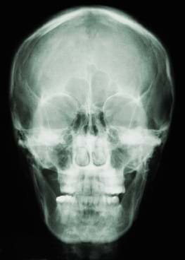X-ray of a human skull.