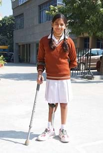 A young girl with polio using a crutch.