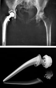 "Two images: A black and white x-ray shows a human pelvis with a total hip joint replacement—an artificial ""ball and socket"" joint. A stainless steel and ultra-high molecular weight polythene hip replacement device, with one end shaped like a ball and the other tapering to a point."