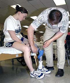 Photograph shows a man adjusting a young woman's lower leg prosthetic.