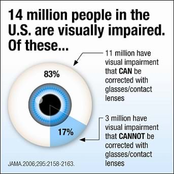 Pie graph that looks like an eyeball showing 83% of visual impairment can be corrected with glasses and 17 % cannot be corrected with glasses.
